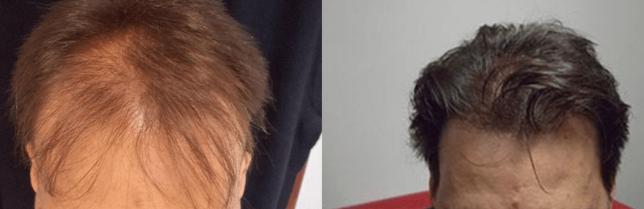 férfi hajbeültetés
